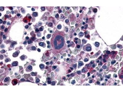 Rabbit Anti-Thrombin Receptor Antibody
