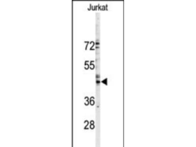 Rabbit Anti-Connexin 46, NT Antibody