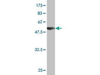 Mouse Anti-UNC119 Antibody
