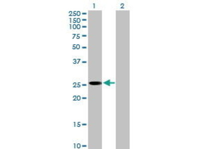 Mouse Anti-PLBD1 Antibody