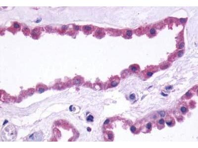 Rabbit Anti-GRM3 Antibody