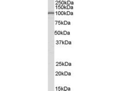 Goat Anti-LARP2 Antibody