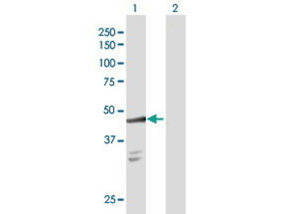Rabbit Anti-SULT2B1 Antibody