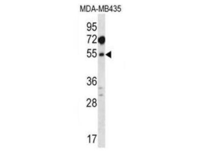 Rabbit Anti-MAT1A, NT Antibody