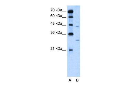 Rabbit Anti-SLC36A3 Antibody