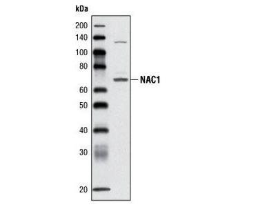 Rabbit Anti-Nucleus accumbens-associated protein 1 Antibody