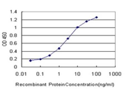 Mouse Anti-ATRX Antibody