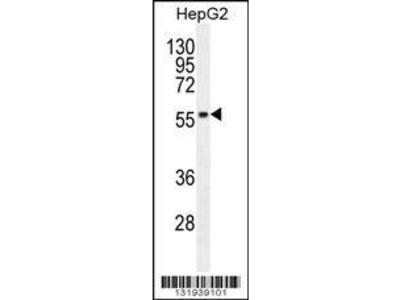 Rabbit Anti-PPP4R1L, NT Antibody