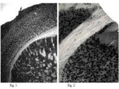 Rabbit Anti-NeuN Antibody (Biotin)