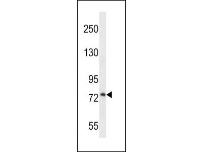 Rabbit Anti-PLOD1, NT Antibody