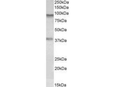 Goat Anti-VAP1 Antibody