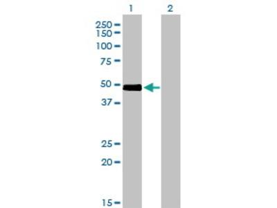Mouse Anti-CRLF1 Antibody