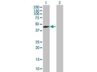 Mouse Anti-CYP26A1 Antibody