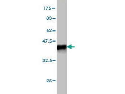 Mouse Anti-ENPP3 Antibody