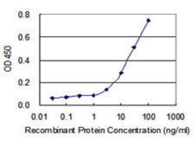 Mouse Anti-SPSB1 Antibody