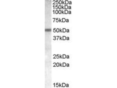 Goat Anti-CHRNB3 Antibody