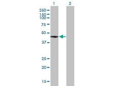 Mouse Anti-FCRLA Antibody