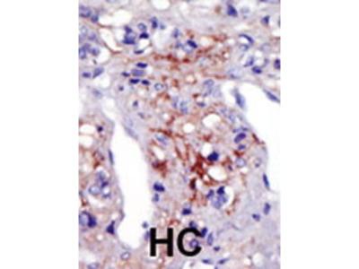 Rabbit Anti-PIP5KI gamma, NT Antibody
