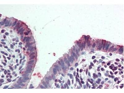 Rabbit Anti-STEAP2 Antibody