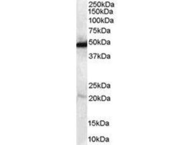 Goat Anti-NDRG1 Antibody