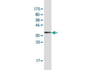Mouse Anti-PPP1R10 Antibody