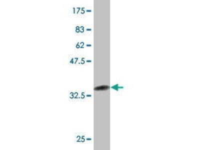 Mouse Anti-NR4A3 Antibody