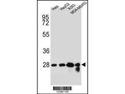 Rabbit Anti-CHPT1, NT Antibody