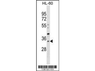 Rabbit Anti-SULT1B1, CT Antibody