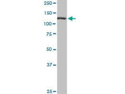 Mouse Anti-TBCD Antibody