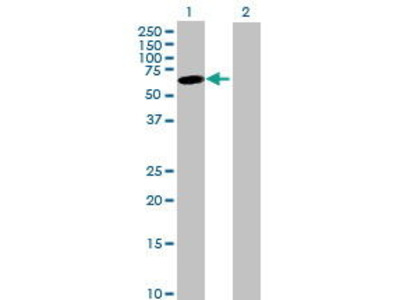 Mouse Anti-JRK Antibody