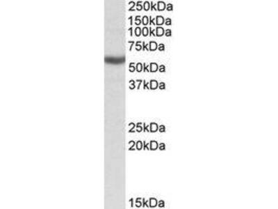 Goat Anti-ALDH3B1 Antibody