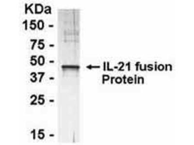Pab Ch x human Interleukin 21 (IL-21) antibody