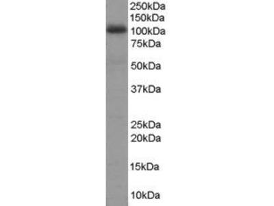Goat Anti-AKAP 95 Antibody
