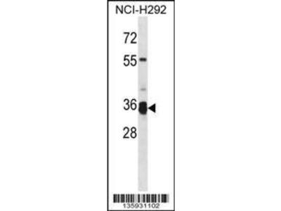 Rabbit Anti-TMPRSS12, NT Antibody