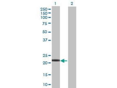 Mouse Anti-LYG1 Antibody