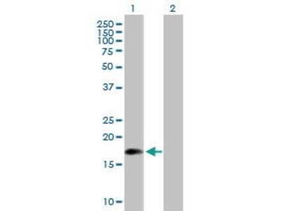 Mouse Anti-ARL5 Antibody