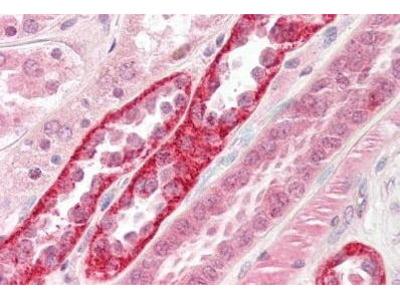 Mouse Anti-CSNK2A1 Antibody