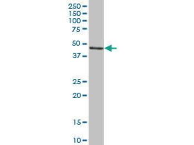 Mouse Anti-SERPINH1 Antibody
