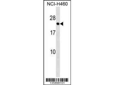 Rabbit Anti-RAB41, CT Antibody