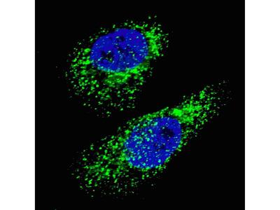 Rabbit Anti-MAP1LC3A Antibody