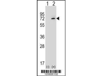 Rabbit Anti-XRCC6, CT Antibody