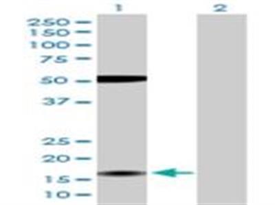 ZMAT4 Antibody