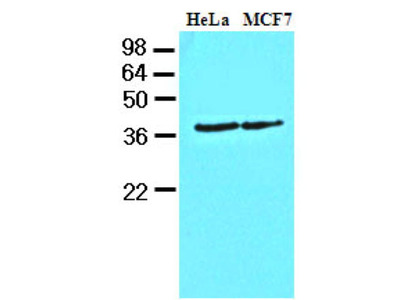 Mouse Anti-Casein Kinase 1 alpha Antibody