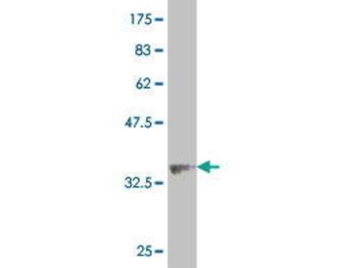 Mouse Anti-ALPK2 Antibody