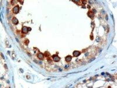 Goat Anti-ALMS1 Antibody
