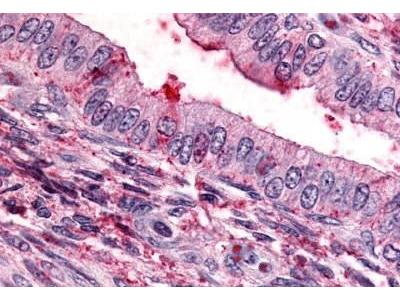 Rabbit Anti-Thromboxane A2 Receptor Antibody