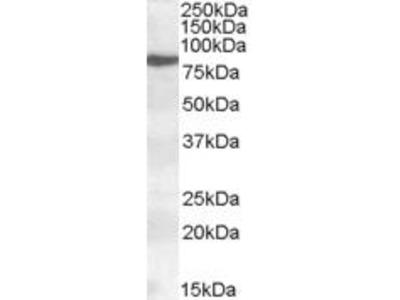 Goat Anti-ALOX15 Antibody