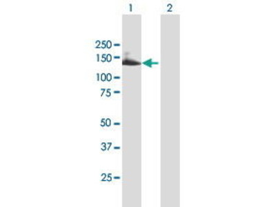 Mouse Anti-Tetratricopeptide Repeat Protein 18 Antibody