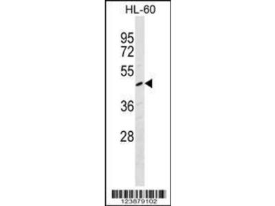 Rabbit Anti-F2R, NT Antibody