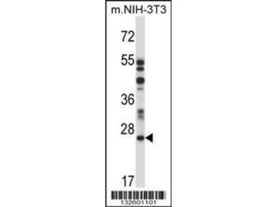 Rabbit Anti-LAPTM4A, NT Antibody